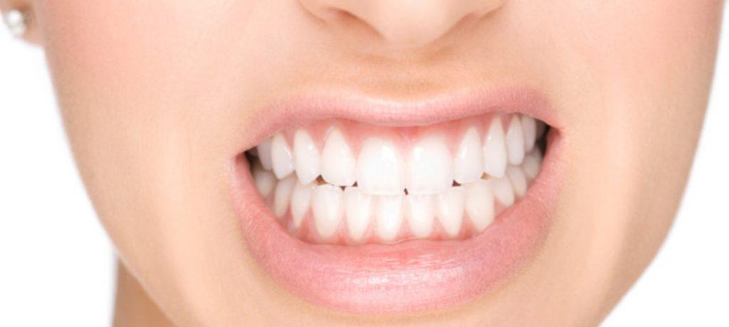 bruxismo digrignare denti