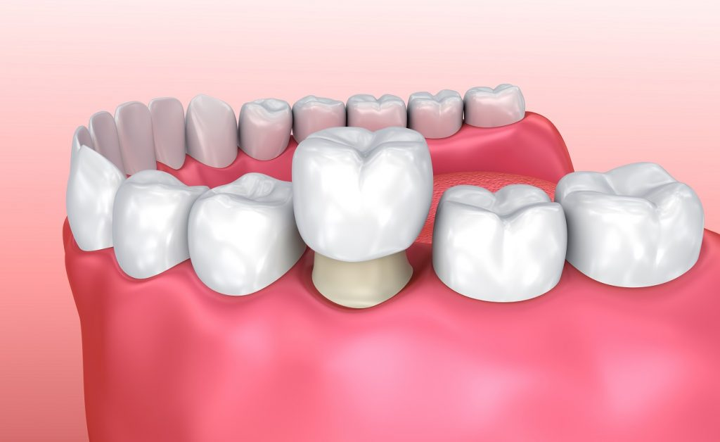 corona dentale