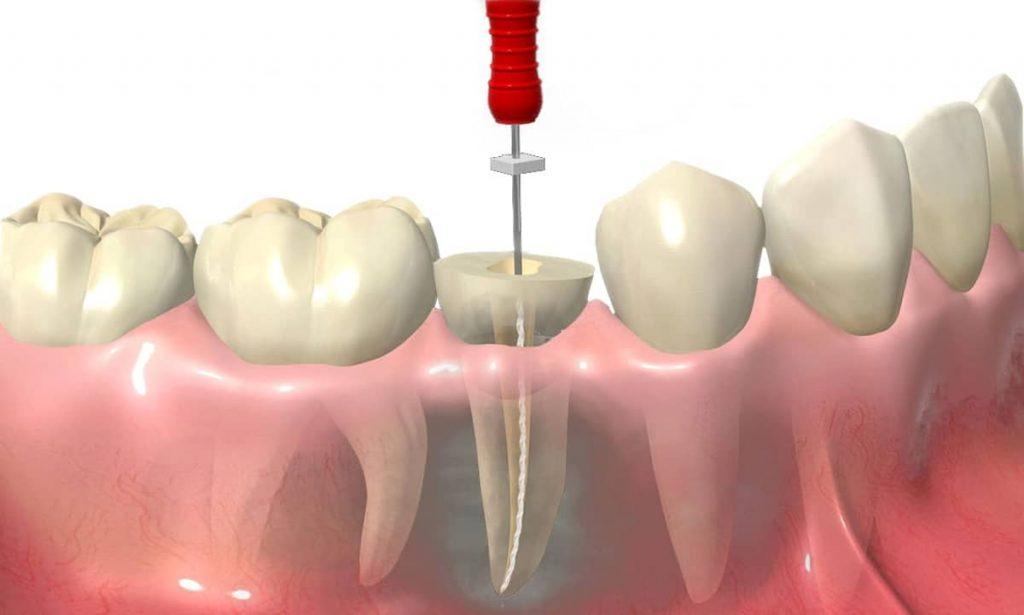 devitalizzare dente