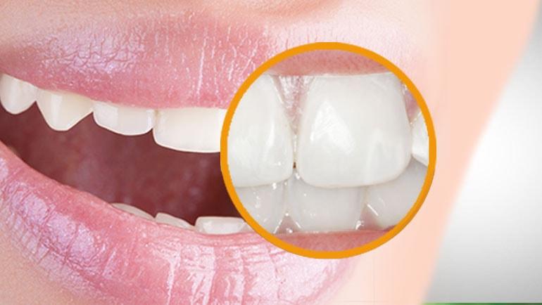 macchie bianche sui denti-come eliminarle cause sintomi
