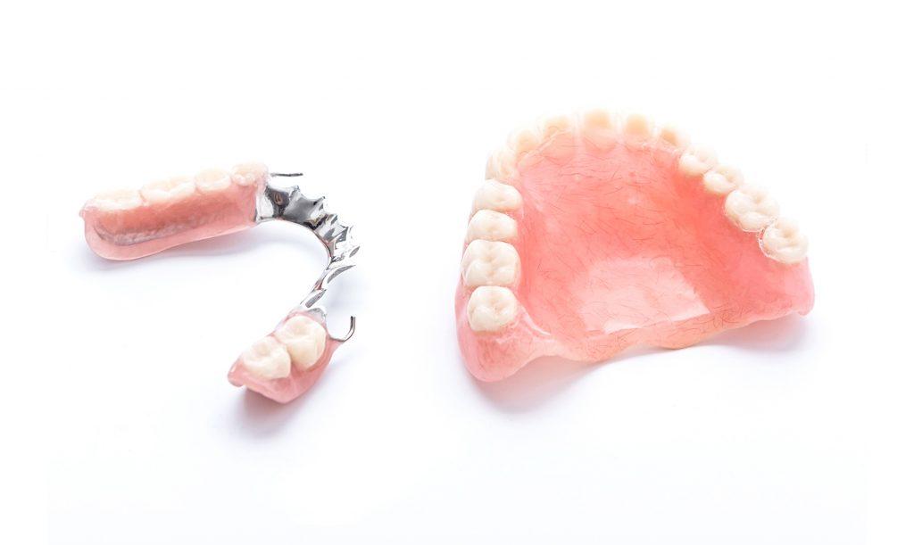 protesi fisse protesi mobili scheletrati
