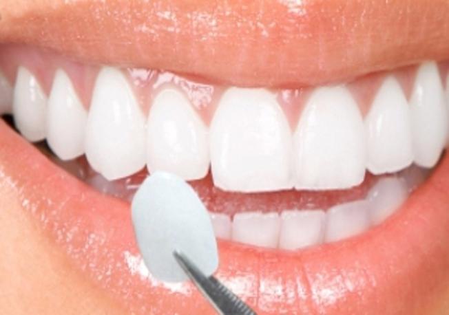 faccette dentali i viaggi del dente