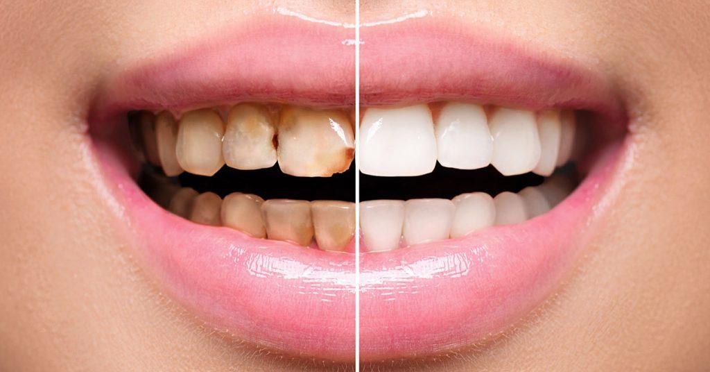 faccette dentali viaggi del dente